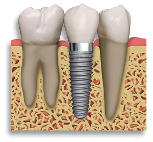 implant-between-2-teeth1