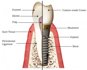 implant_anatomy1
