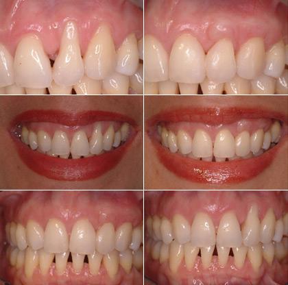 longteeth11