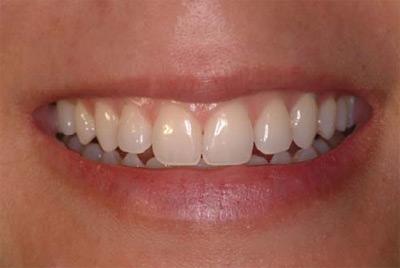 periodontal_cosmetic
